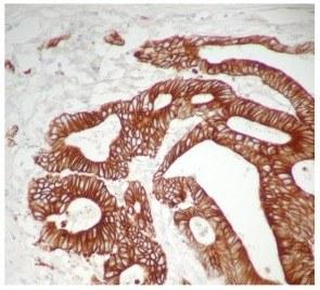 Kits de détection polymère HRP et AP pour détecter les anticorps de la même espèce hote que le tissu